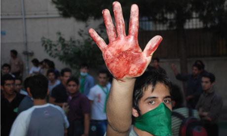 Iran-protestors-bloodied--001