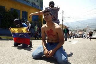 Boy with blood on his chest kneels in front of police after student Kluiver Roa died during a protest in San Cristobal